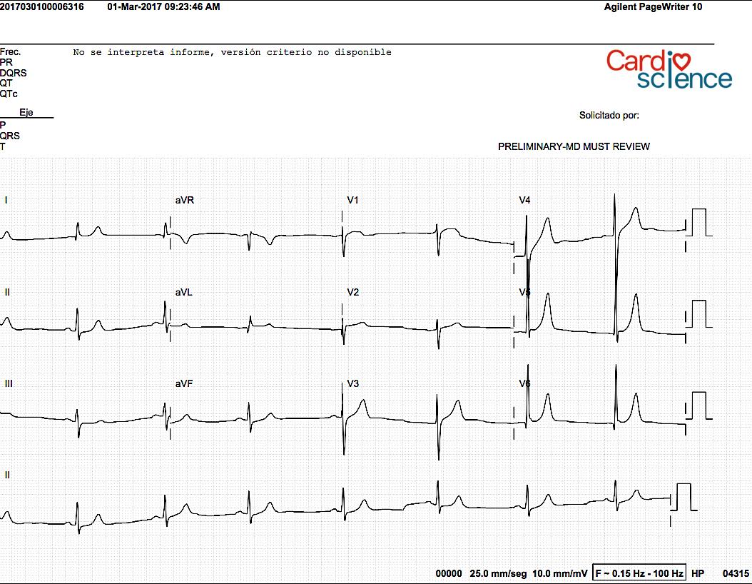 ECG 7.2 Ritmo sinusal, arritmias del nodo sinusal - Cardio Science