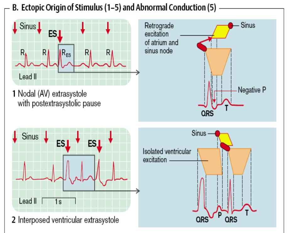 Ecg 7 8 Arritmias Ventriculares Cardio Science